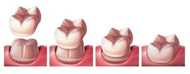 Dental Crowns Sugar Land Tx