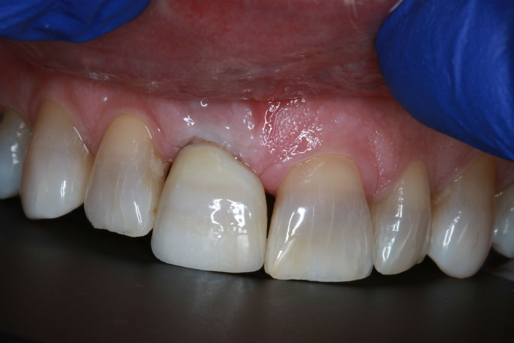 Damaged Teeth Treatment