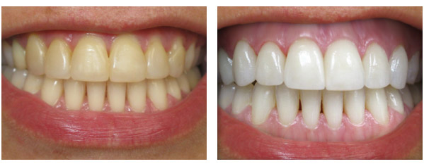 Whitening and Bleaching