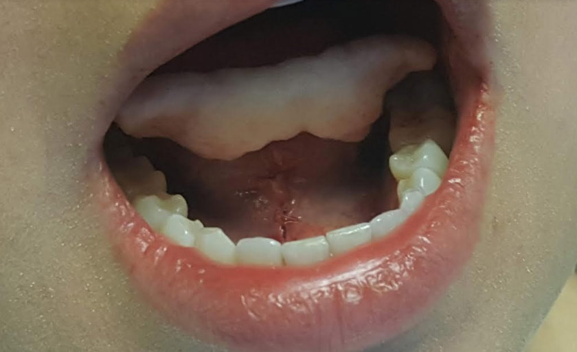Frenectomy Sugar Land TX