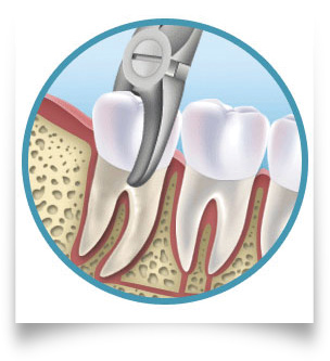 TOOTH EXTRACTIONS SUGAR LAND